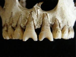 dental_modification1